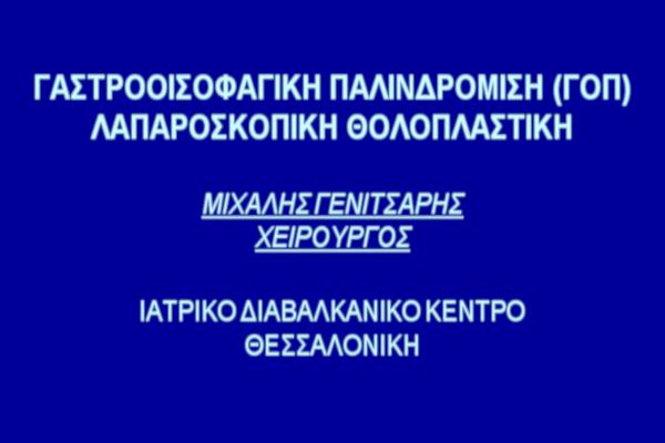 Γαστροοισοφαφική παλινδρόμιση - λαπαροσκοπική θολοπλαστική