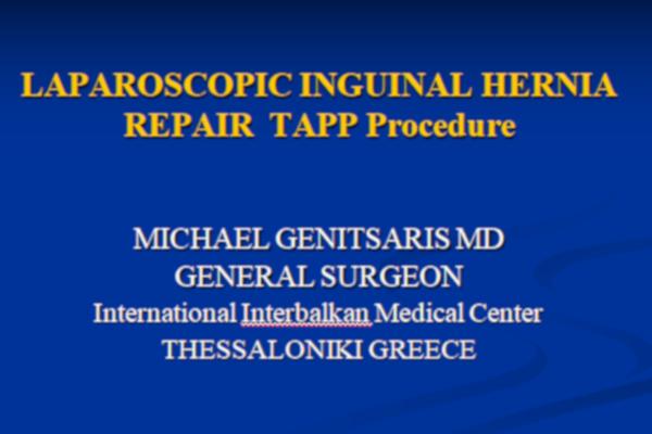 Laparoscopic inguinal herna